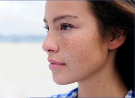 """""""3 thủ phạm"""" làm biến đổi màu da vùng mặt và cách khắc phục"""